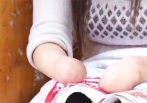 手の指を失った女性