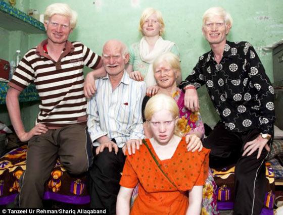 インド人だけど全員真っ白。デリーのアルビノ家族がギネス記録達成