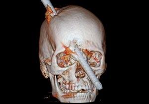 金属棒が頭部を貫通