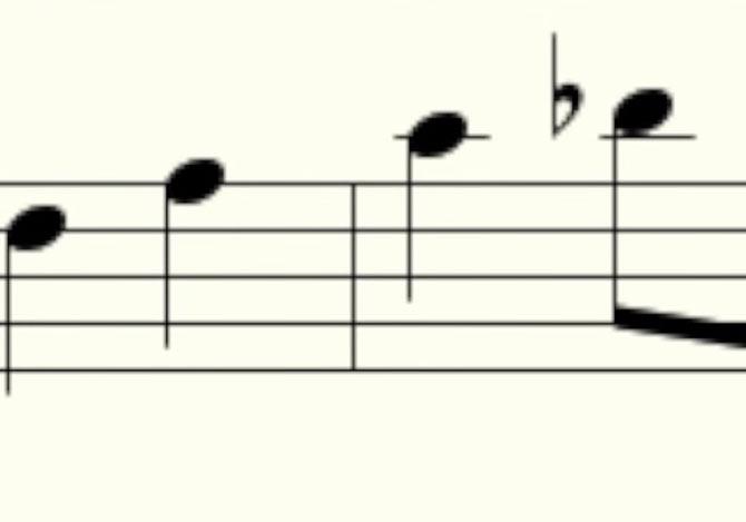 何気ない放屁をアレンジして交響曲に