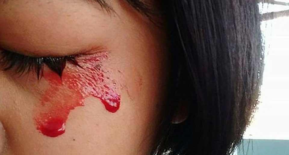 血が汗となって出てきてしまうタイの少女
