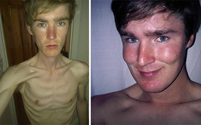 摂食障害を克服した人たち