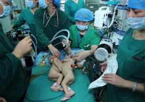 結合双生児の分離手術
